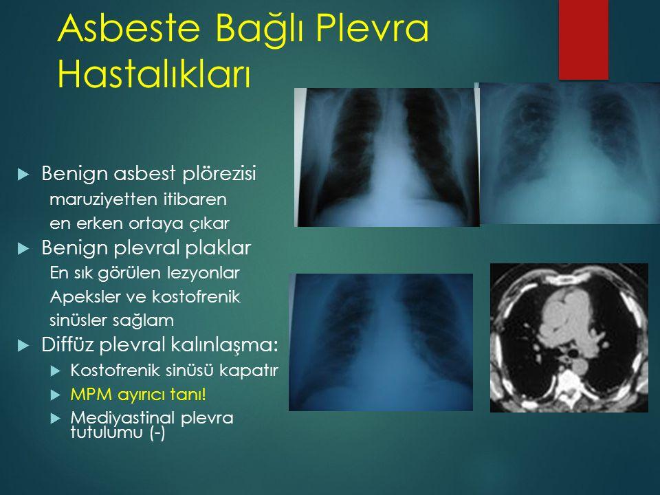 Asbeste Bağlı Plevra Hastalıkları  Benign asbest plörezisi maruziyetten itibaren en erken ortaya çıkar  Benign plevral plaklar En sık görülen lezyon