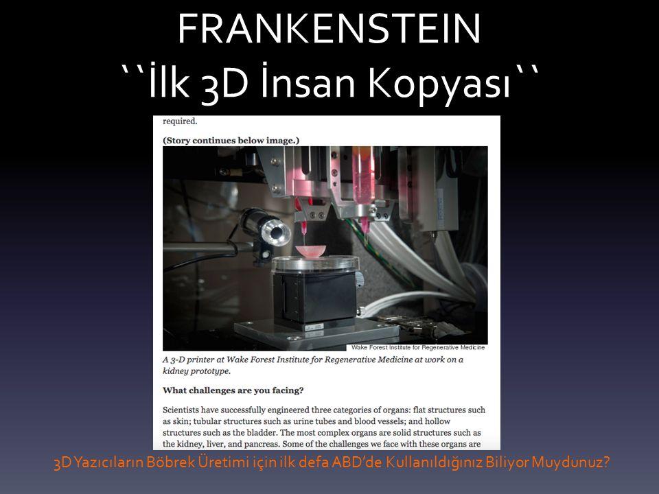 FRANKENSTEIN ``İlk 3D İnsan Kopyası`` 3D Yazıcıların Böbrek Üretimi için ilk defa ABD'de Kullanıldığınız Biliyor Muydunuz?
