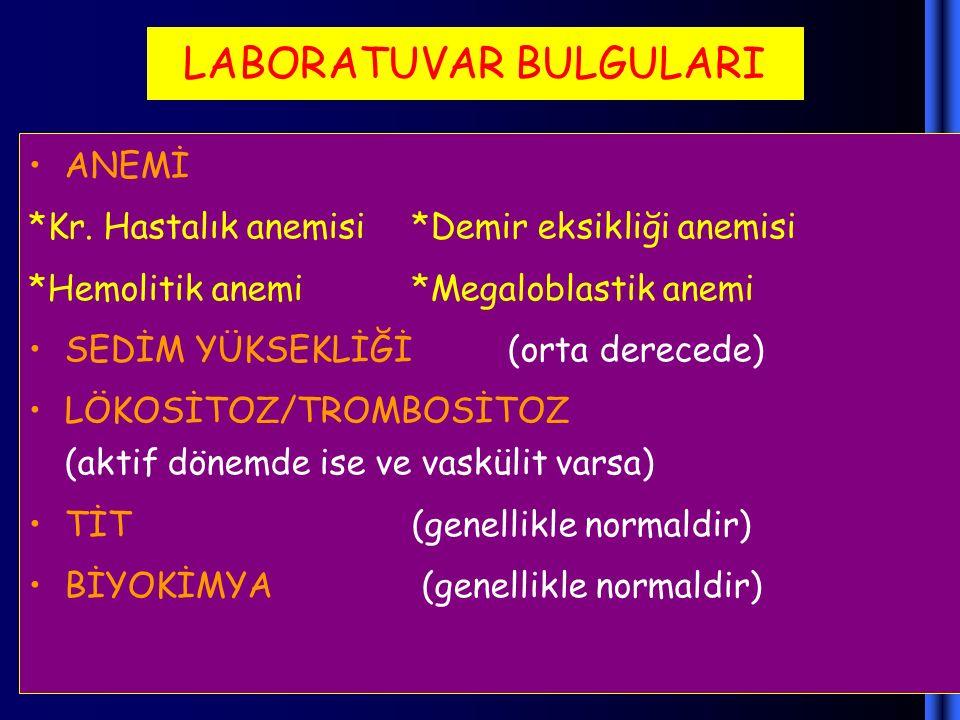 LABORATUVAR BULGULARI ANEMİ *Kr. Hastalık anemisi*Demir eksikliği anemisi *Hemolitik anemi*Megaloblastik anemi SEDİM YÜKSEKLİĞİ (orta derecede) LÖKOSİ