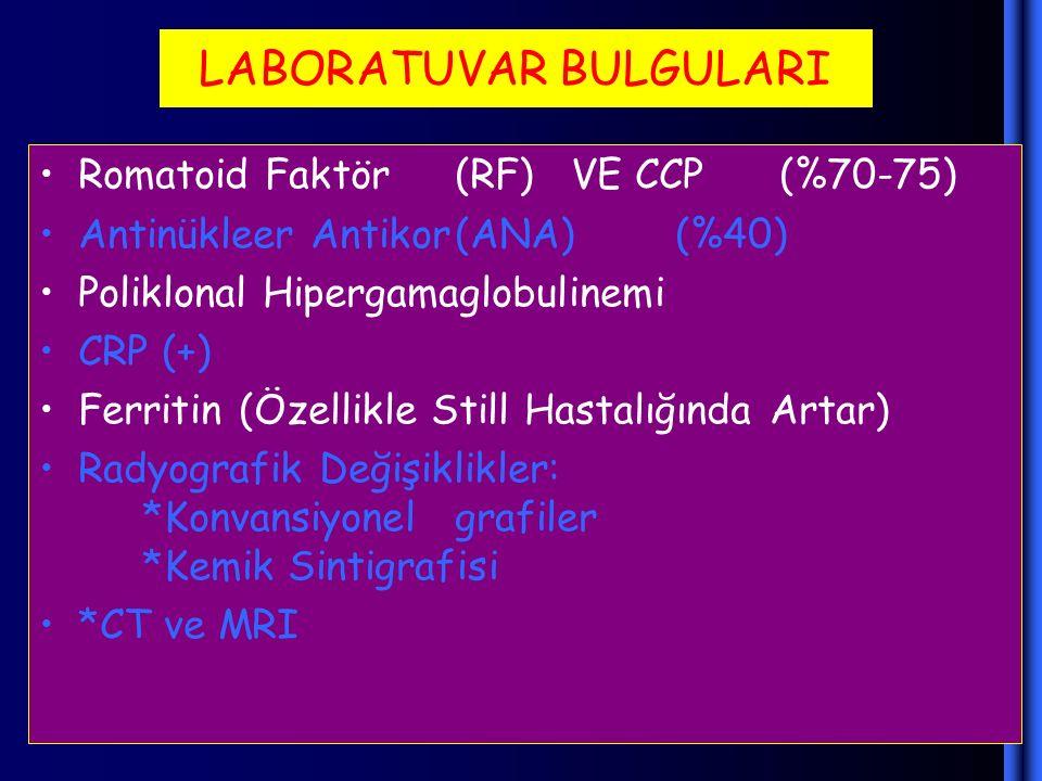 LABORATUVAR BULGULARI Romatoid Faktör(RF) VE CCP (%70-75) Antinükleer Antikor(ANA) (%40) Poliklonal Hipergamaglobulinemi CRP (+) Ferritin (Özellikle S