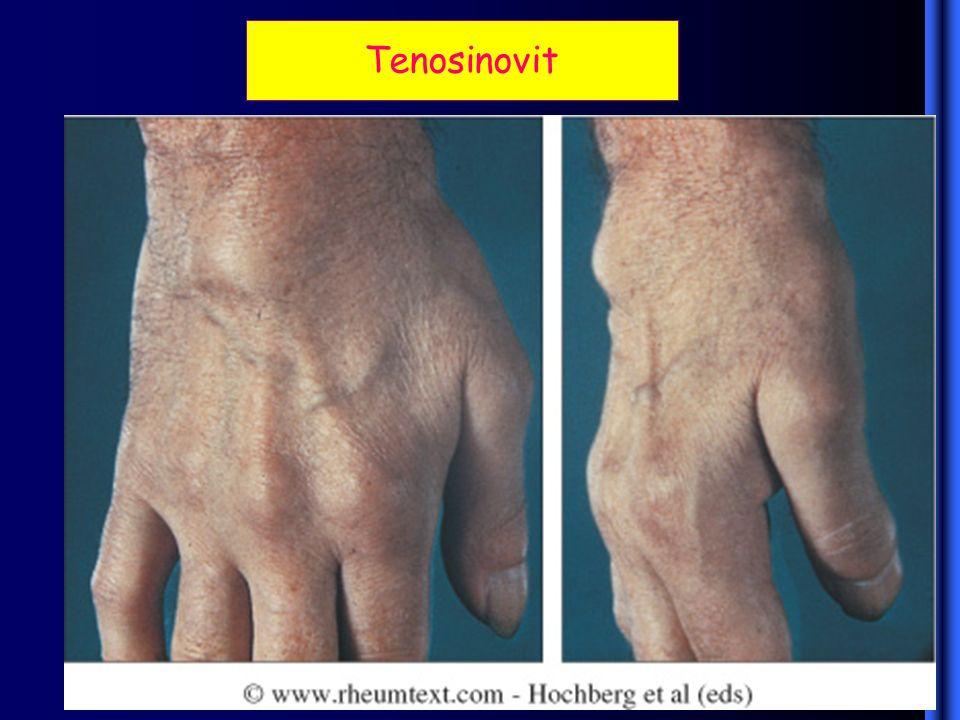 RADYOLOJİK BULGULAR (2) B- GEÇ DÖNEM DEĞİŞİKLİKLERİ 1-Eklem Yüzeyinde Aşırı Düzensizlik 2-Subluksasyon 3-Genel Osteoporoz 4-Eklem Deformiteleri 5-Dejeneratif Değişiklikler 6-Destrüktif Değişiklikler 7-Kemik Ankilozlaşması
