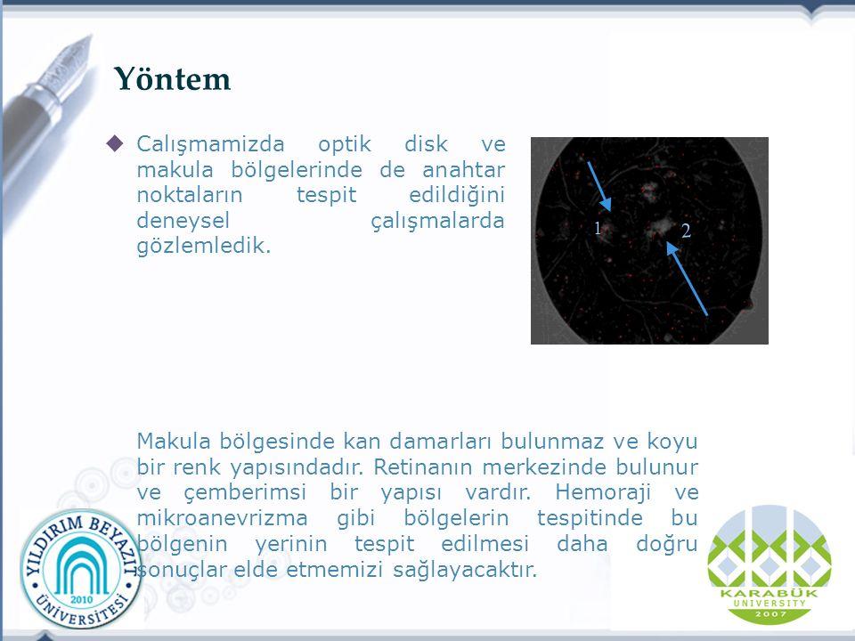 Yöntem  Calışmamizda optik disk ve makula bölgelerinde de anahtar noktaların tespit edildiğini deneysel çalışmalarda gözlemledik.