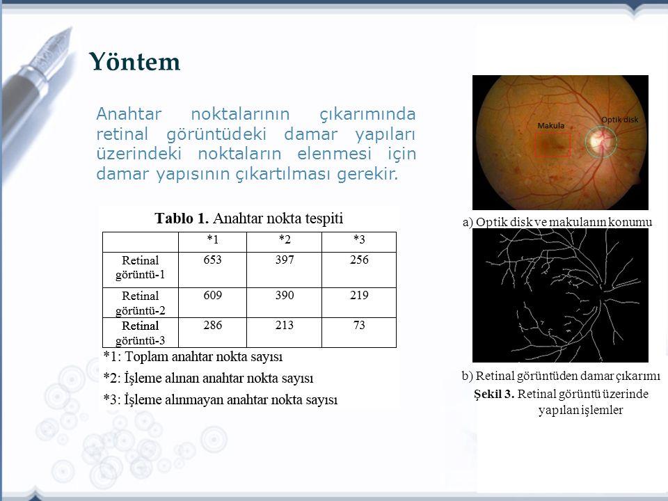 Yöntem Anahtar noktalarının çıkarımında retinal görüntüdeki damar yapıları üzerindeki noktaların elenmesi için damar yapısının çıkartılması gerekir.