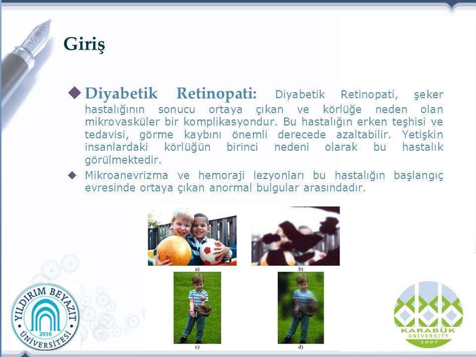 Giriş  Diyabetik Retinopati: Diyabetik Retinopati, şeker hastalığının sonucu ortaya çıkan ve körlüğe neden olan mikrovasküler bir komplikasyondur.