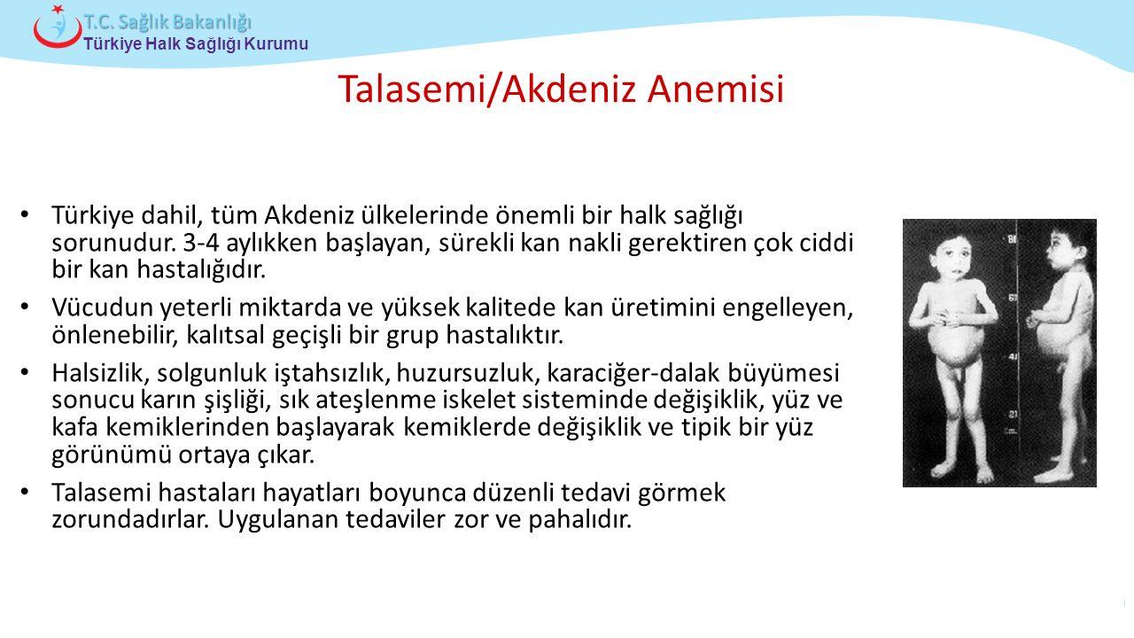 Çocuk ve Ergen Sağlığı Daire Başkanlığı Türkiye Halk Sağlığı Kurumu T.C. Sağlık Bakanlığı Talasemi/Akdeniz Anemisi Türkiye dahil, tüm Akdeniz ülkeleri