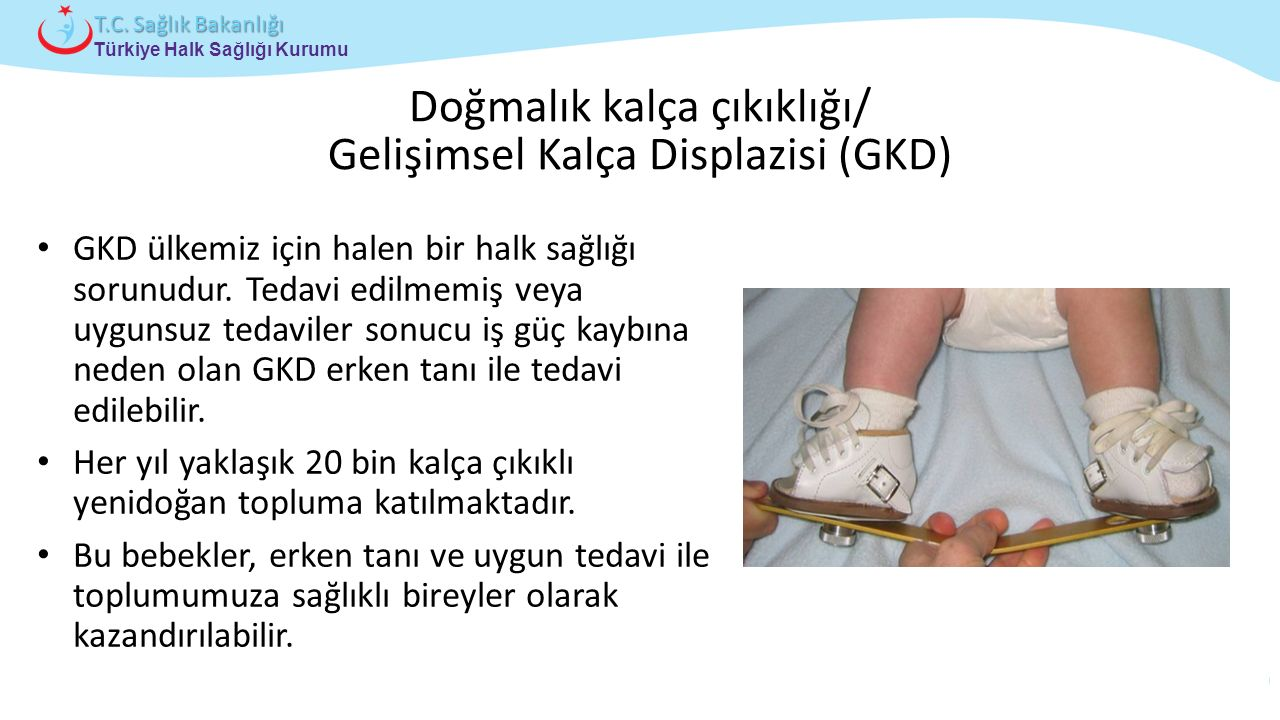 Çocuk ve Ergen Sağlığı Daire Başkanlığı Türkiye Halk Sağlığı Kurumu T.C. Sağlık Bakanlığı Doğmalık kalça çıkıklığı/ Gelişimsel Kalça Displazisi (GKD)