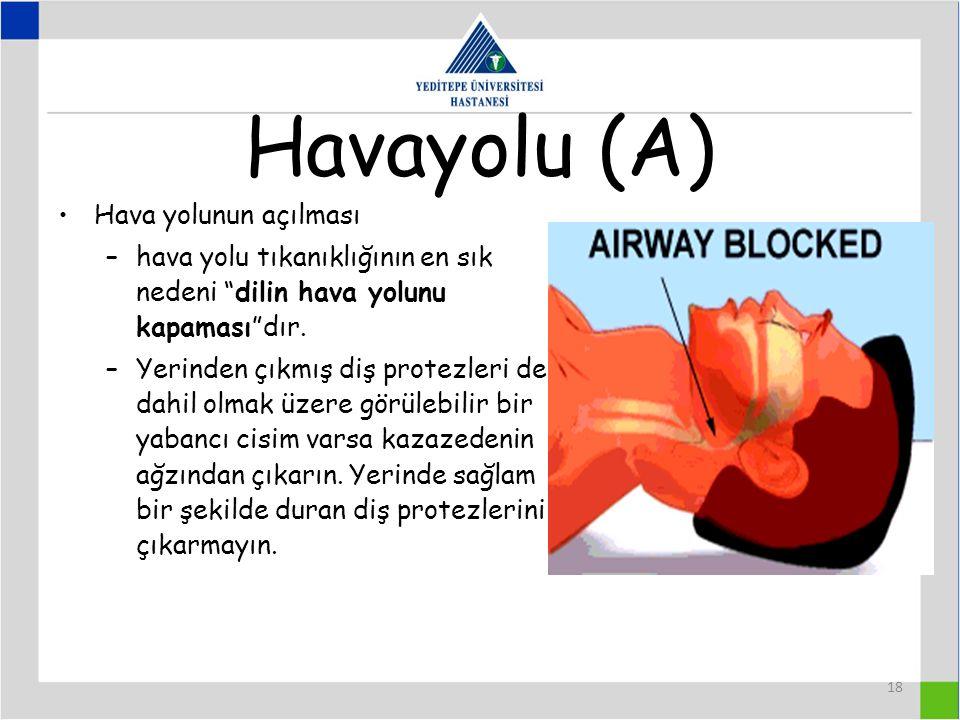 18 Havayolu (A) Hava yolunun açılması –hava yolu tıkanıklığının en sık nedeni dilin hava yolunu kapaması dır.