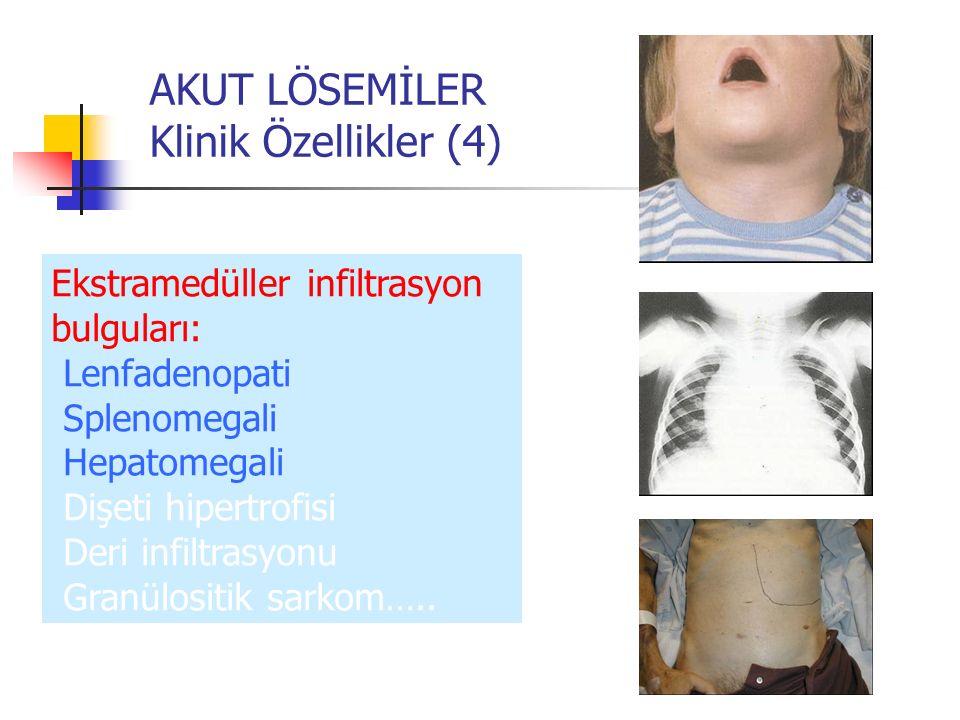 AKUT LÖSEMİLER Klinik Özellikler (4) Ekstramedüller infiltrasyon bulguları: Lenfadenopati Splenomegali Hepatomegali Dişeti hipertrofisi Deri infiltras