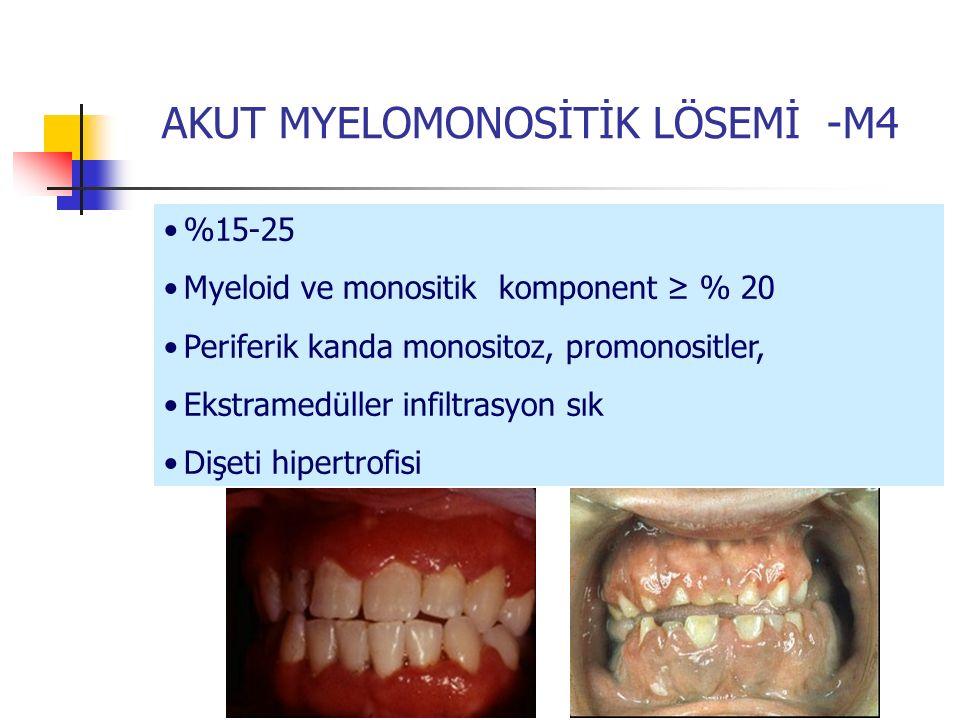AKUT MYELOMONOSİTİK LÖSEMİ -M4 %15-25 Myeloid ve monositik komponent ≥ % 20 Periferik kanda monositoz, promonositler, Ekstramedüller infiltrasyon sık