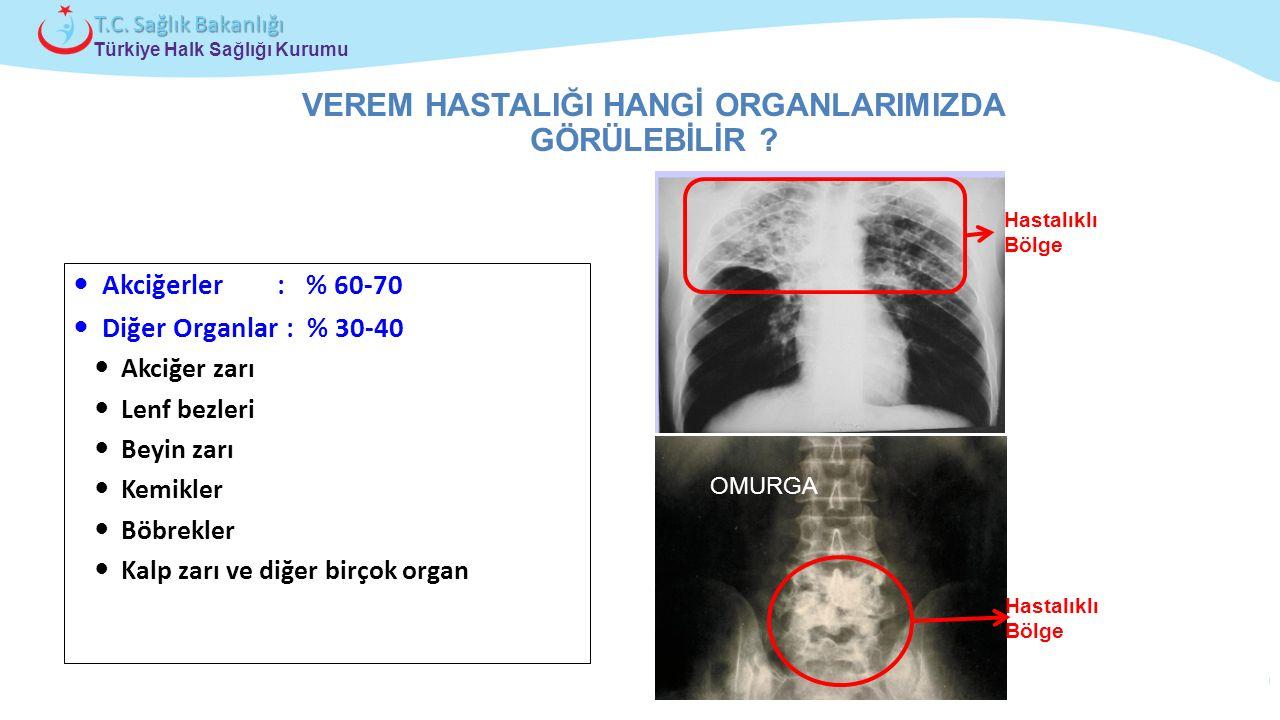 Çocuk ve Ergen Sağlığı Daire Başkanlığı Türkiye Halk Sağlığı Kurumu T.C. Sağlık Bakanlığı Akciğerler : % 60-70 Diğer Organlar : % 30-40 Akciğer zarı L