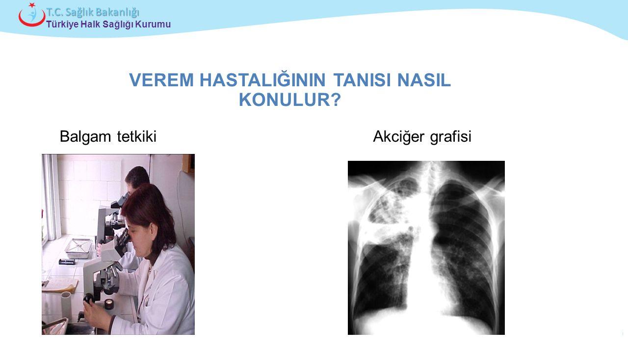 Çocuk ve Ergen Sağlığı Daire Başkanlığı Türkiye Halk Sağlığı Kurumu T.C. Sağlık Bakanlığı VEREM HASTALIĞININ TANISI NASIL KONULUR? Balgam tetkiki Akci