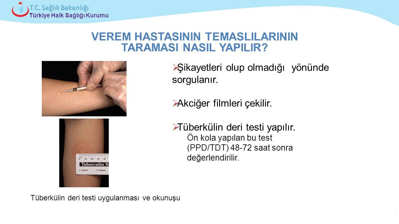Çocuk ve Ergen Sağlığı Daire Başkanlığı Türkiye Halk Sağlığı Kurumu T.C. Sağlık Bakanlığı Tüberkülin deri testi uygulanması ve okunuşu VEREM HASTASINI