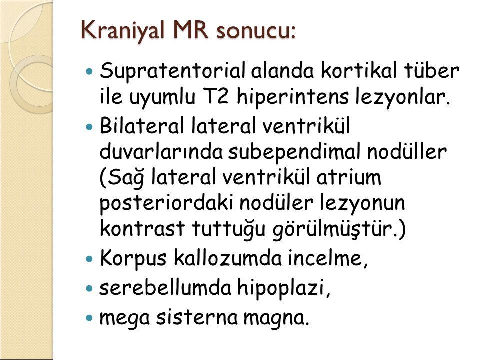 Kraniyal MR sonucu: Supratentorial alanda kortikal tüber ile uyumlu T2 hiperintens lezyonlar. Bilateral lateral ventrikül duvarlarında subependimal no