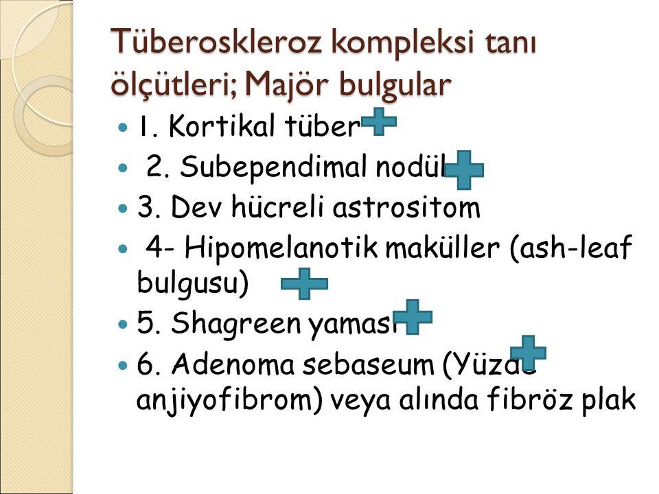 Tüberoskleroz kompleksi tanı ölçütleri; Majör bulgular 1. Kortikal tüber 2. Subependimal nodül 3. Dev hücreli astrositom 4- Hipomelanotik maküller (as