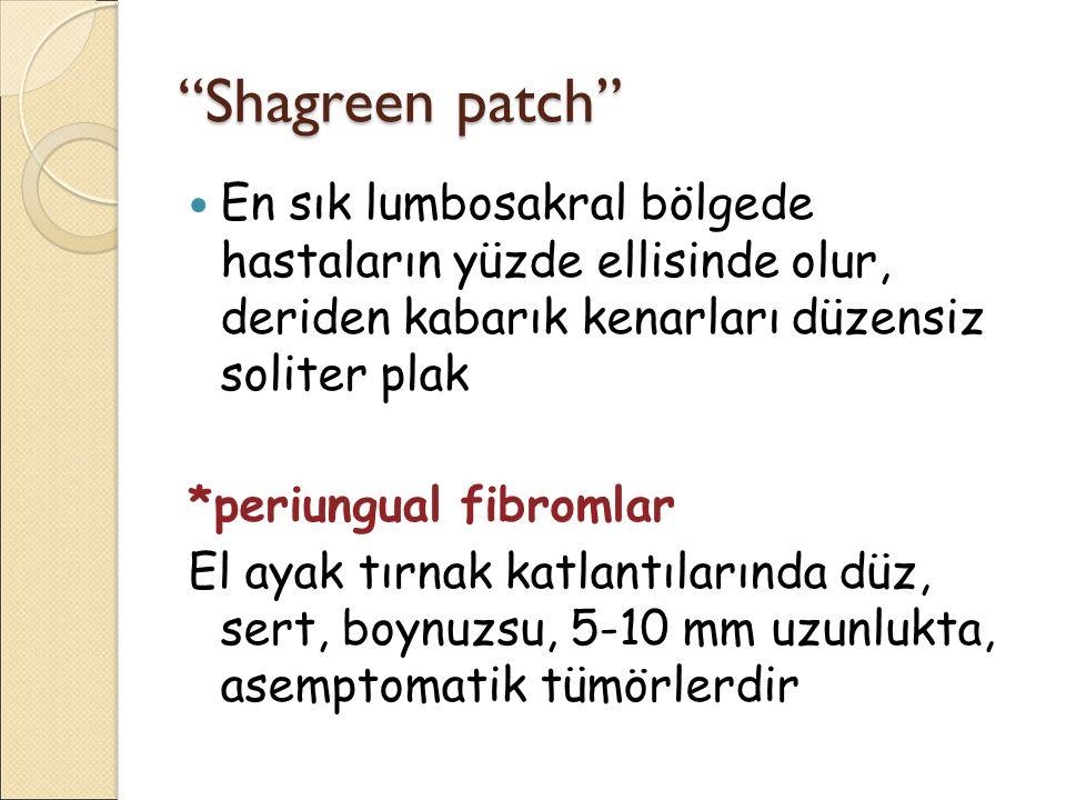 """""""Shagreen patch"""" En sık lumbosakral bölgede hastaların yüzde ellisinde olur, deriden kabarık kenarları düzensiz soliter plak *periungual fibromlar El"""