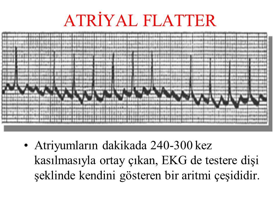 ATRİYAL FLATTER Atriyumların dakikada 240-300 kez kasılmasıyla ortay çıkan, EKG de testere dişi şeklinde kendini gösteren bir aritmi çeşididir.