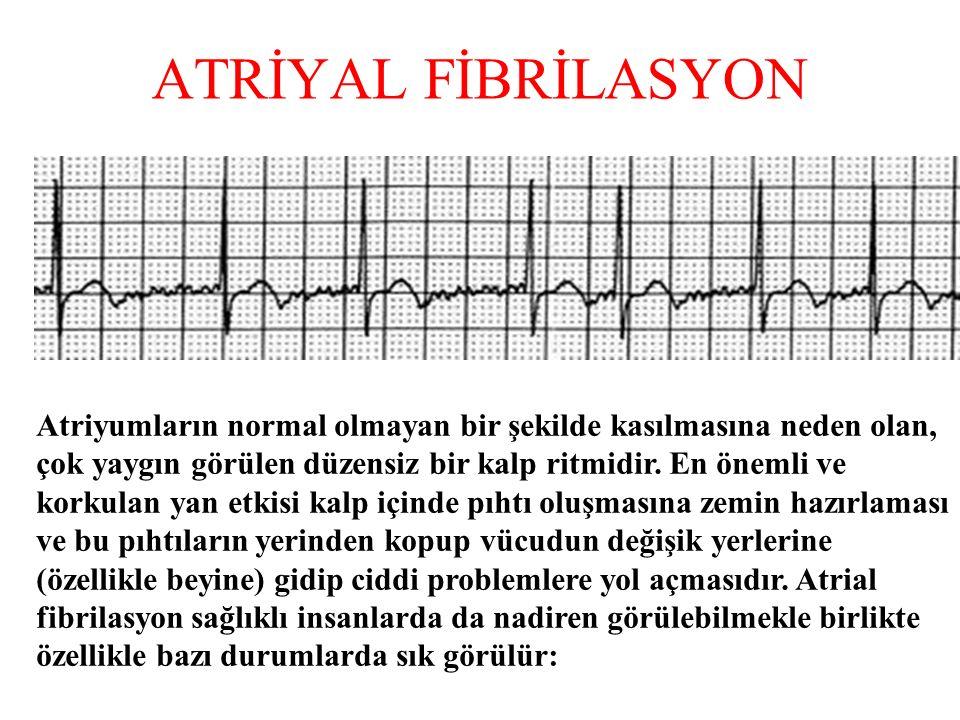 ATRİYAL FİBRİLASYON Atriyumların normal olmayan bir şekilde kasılmasına neden olan, çok yaygın görülen düzensiz bir kalp ritmidir.