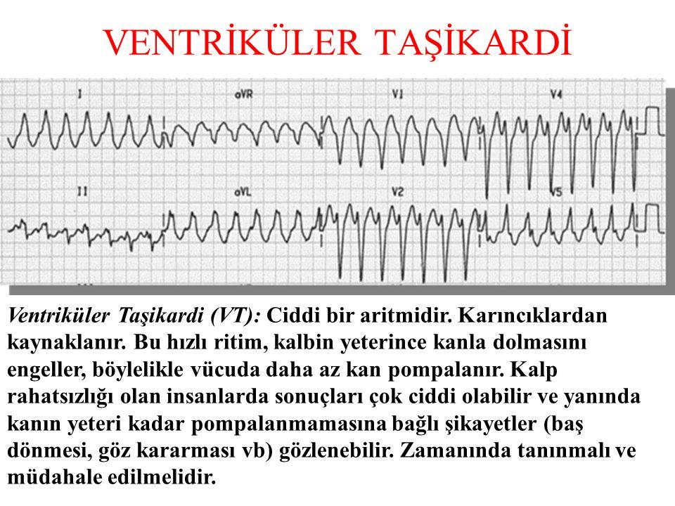 VENTRİKÜLER TAŞİKARDİ Ventriküler Taşikardi (VT): Ciddi bir aritmidir.