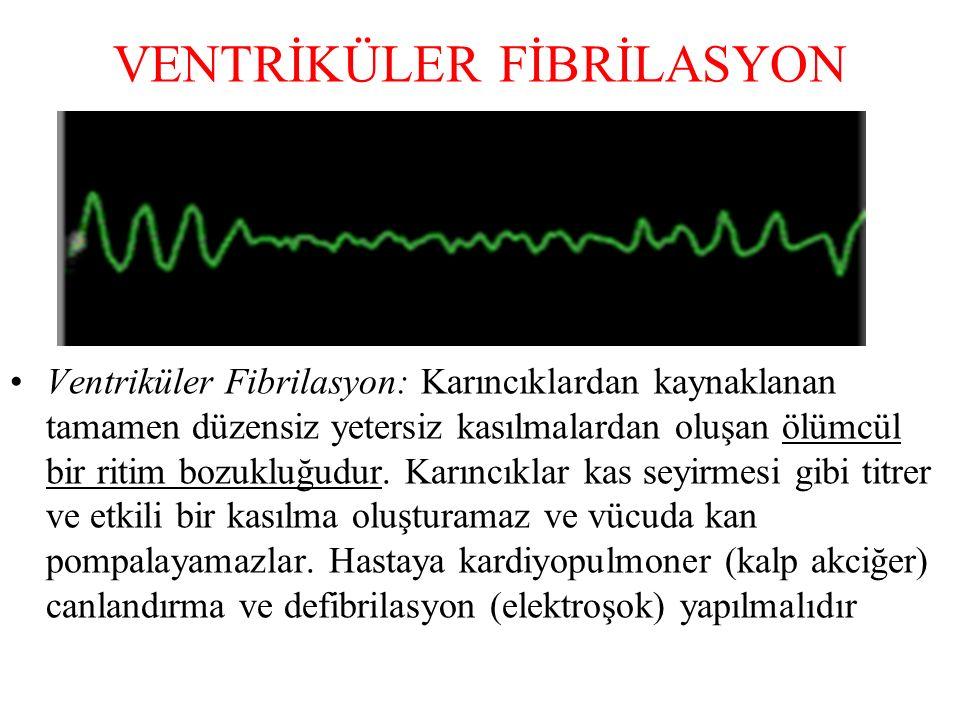 KİNİDİN Ventrikül ve ventrikül dışından kaynaklanan aritmilerin tedavisinde kullanılan geniş spektrumlu bir anti aritmiktir.