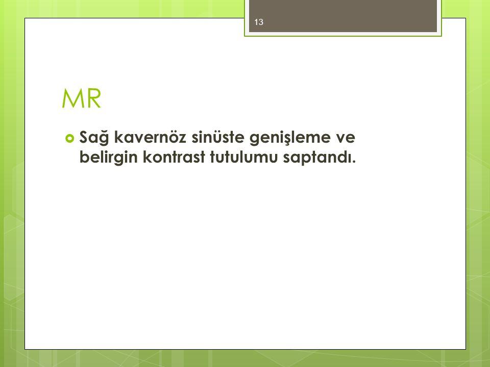 MR  Sağ kavernöz sinüste genişleme ve belirgin kontrast tutulumu saptandı. 13