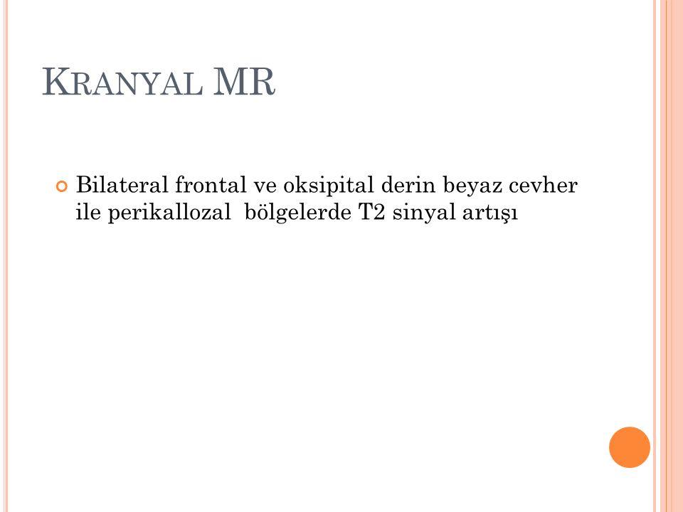 K RANYAL MR Bilateral frontal ve oksipital derin beyaz cevher ile perikallozal bölgelerde T2 sinyal artışı