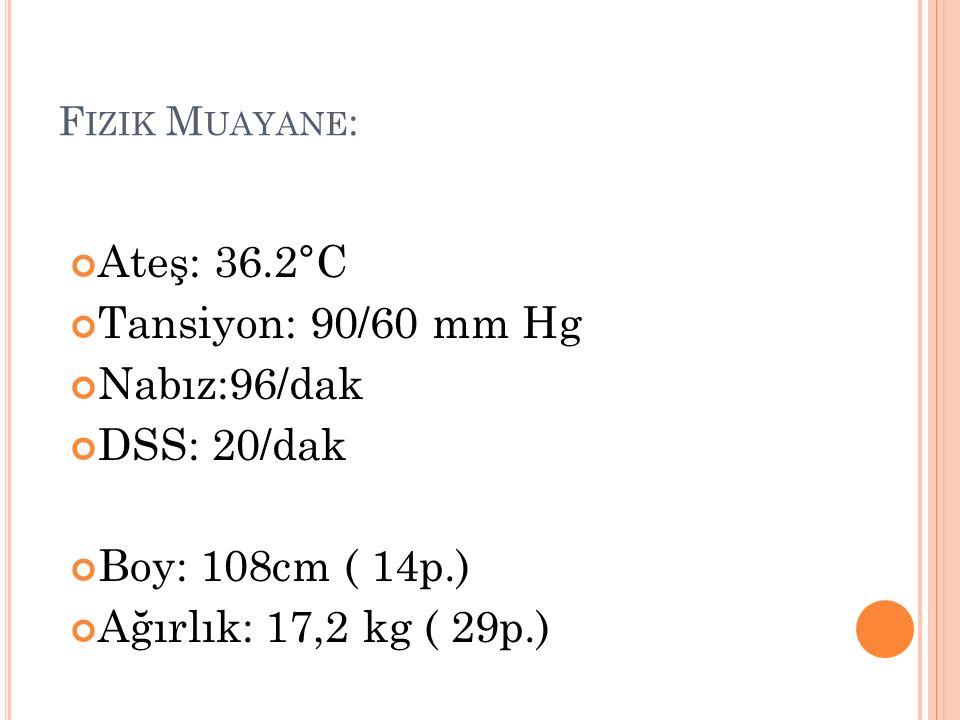 F IZIK M UAYANE : Ateş: 36.2°C Tansiyon: 90/60 mm Hg Nabız:96/dak DSS: 20/dak Boy: 108cm ( 14p.) Ağırlık: 17,2 kg ( 29p.)