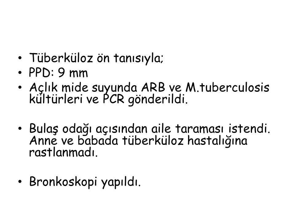 Tüberküloz ön tanısıyla; PPD: 9 mm Açlık mide suyunda ARB ve M.tuberculosis kültürleri ve PCR gönderildi.