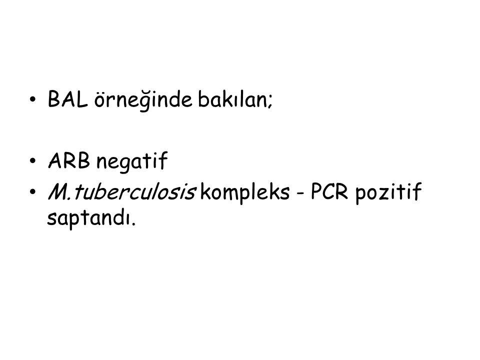 BAL örneğinde bakılan; ARB negatif M.tuberculosis kompleks - PCR pozitif saptandı.