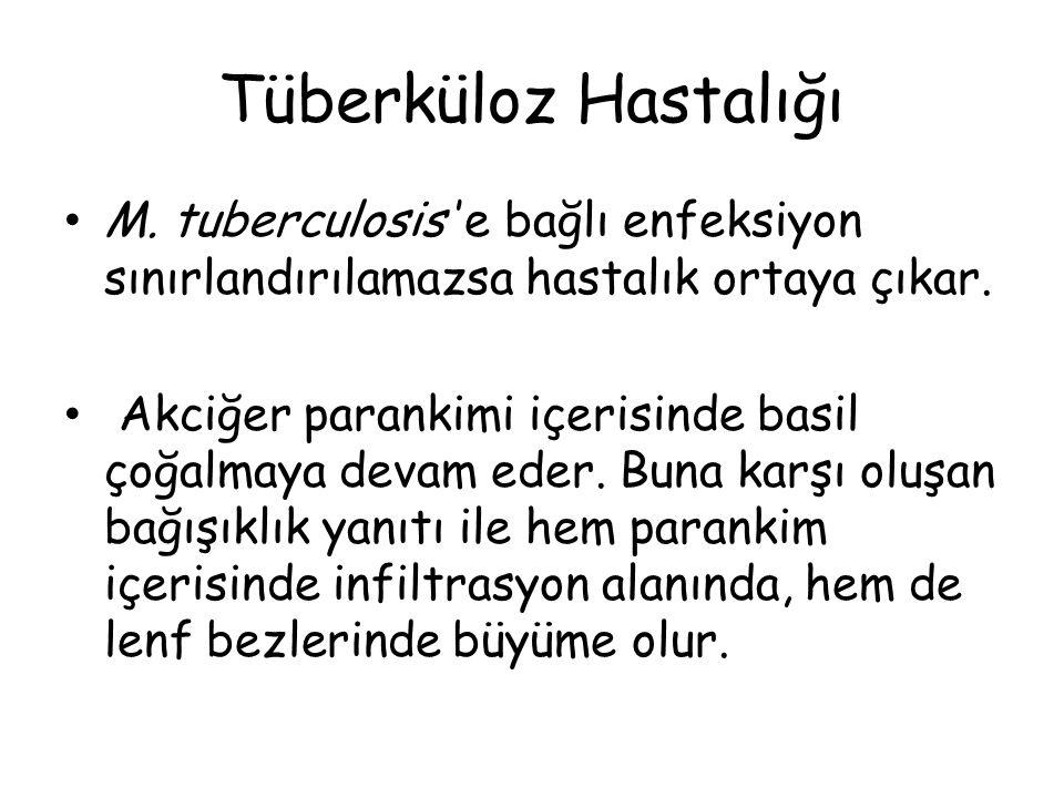 Tüberküloz Hastalığı M. tuberculosis 'e bağlı enfeksiyon sınırlandırılamazsa hastalık ortaya çıkar.