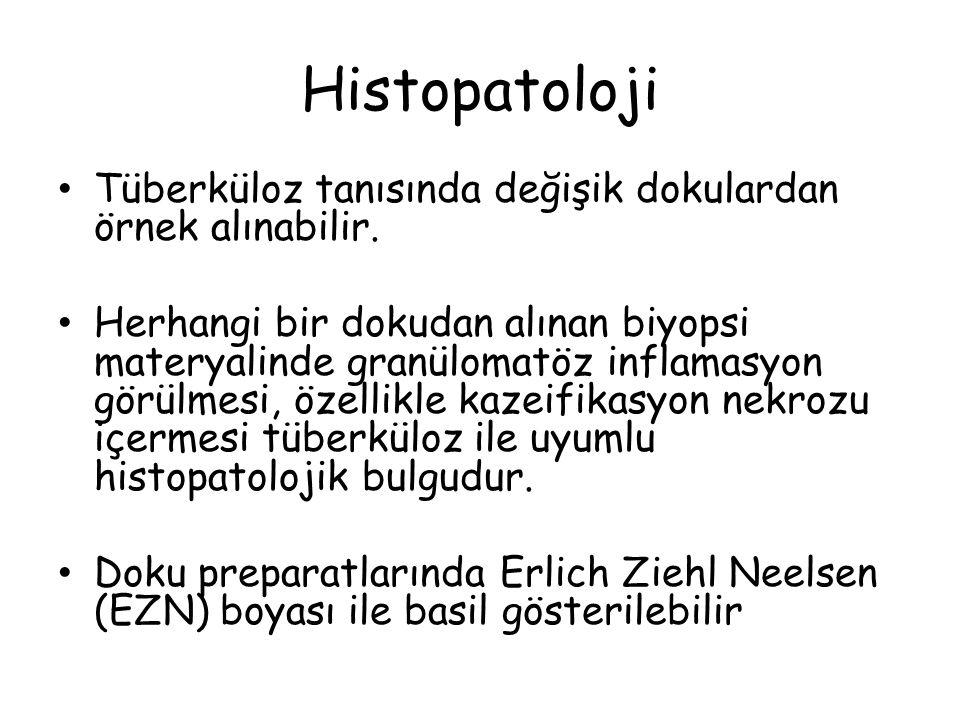 Histopatoloji Tüberküloz tanısında değişik dokulardan örnek alınabilir.