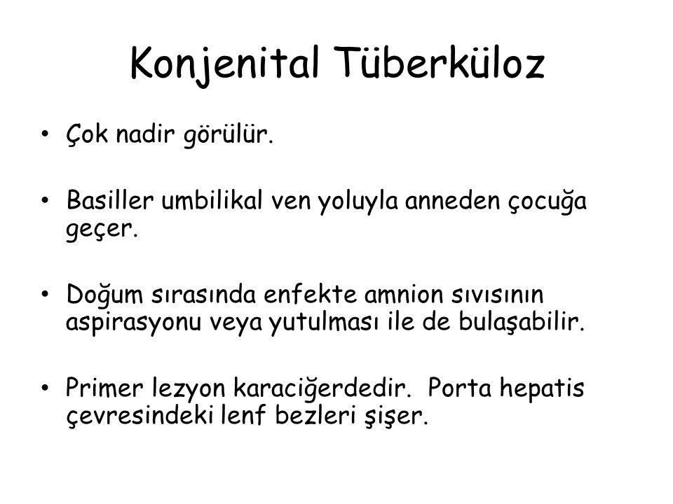 Konjenital Tüberküloz Çok nadir görülür. Basiller umbilikal ven yoluyla anneden çocuğa geçer.