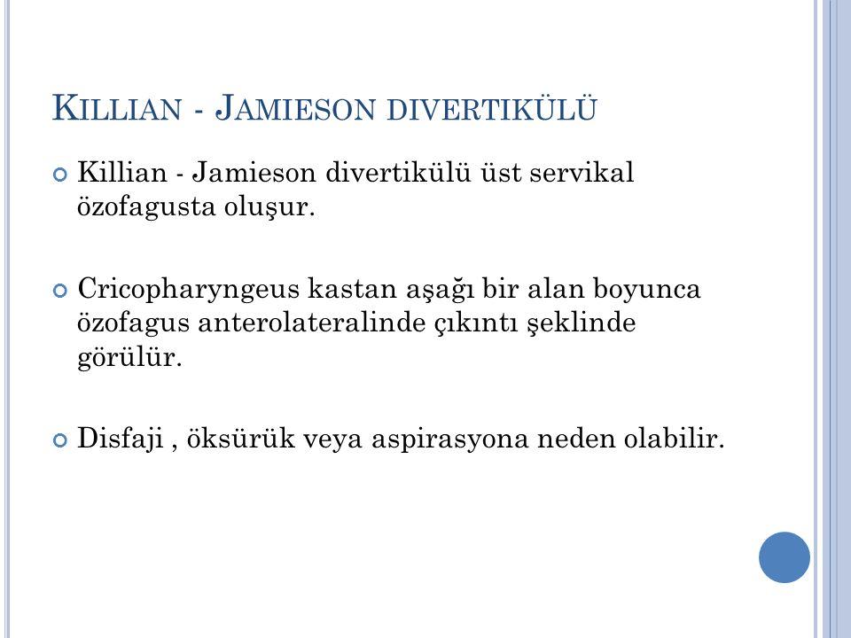K ILLIAN - J AMIESON DIVERTIKÜLÜ Killian - Jamieson divertikülü üst servikal özofagusta oluşur. Cricopharyngeus kastan aşağı bir alan boyunca özofagus