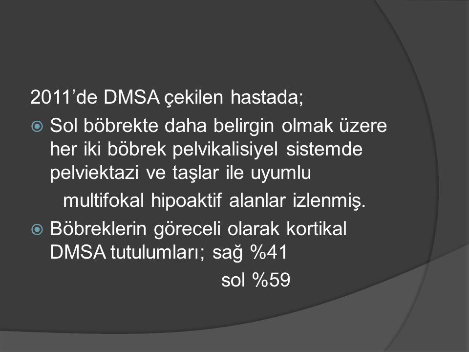 2011'de DMSA çekilen hastada;  Sol böbrekte daha belirgin olmak üzere her iki böbrek pelvikalisiyel sistemde pelviektazi ve taşlar ile uyumlu multifokal hipoaktif alanlar izlenmiş.