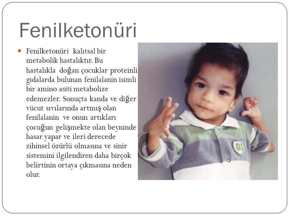 Fenilketonüri Fenilketonüri kalıtsal bir metabolik hastalıktır.