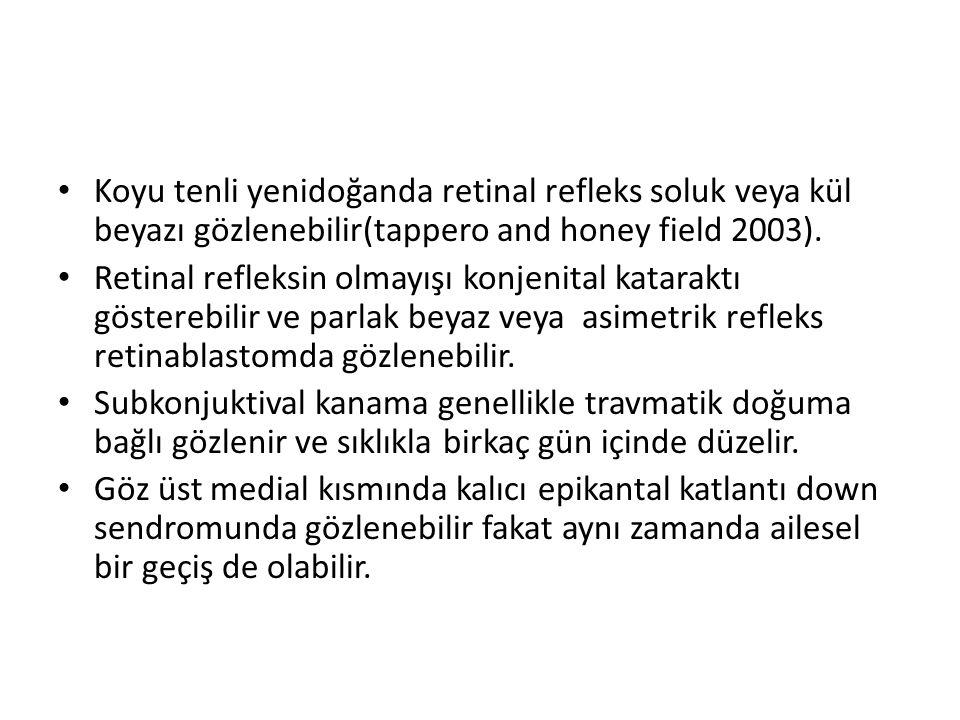 Koyu tenli yenidoğanda retinal refleks soluk veya kül beyazı gözlenebilir(tappero and honey field 2003). Retinal refleksin olmayışı konjenital katarak