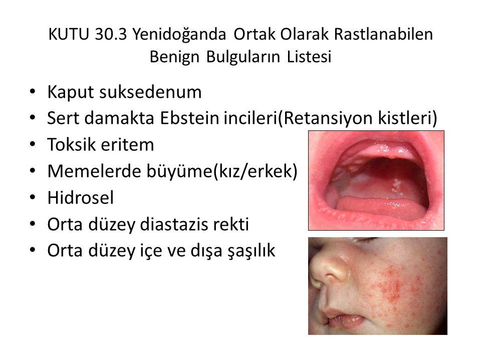 KUTU 30.3 Yenidoğanda Ortak Olarak Rastlanabilen Benign Bulguların Listesi Kaput suksedenum Sert damakta Ebstein incileri(Retansiyon kistleri) Toksik