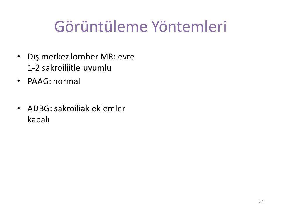 Görüntüleme Yöntemleri Dış merkez lomber MR: evre 1-2 sakroiliitle uyumlu PAAG: normal ADBG: sakroiliak eklemler kapalı 31