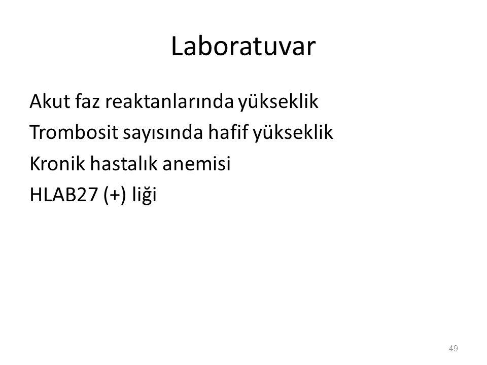 Laboratuvar Akut faz reaktanlarında yükseklik Trombosit sayısında hafif yükseklik Kronik hastalık anemisi HLAB27 (+) liği 49