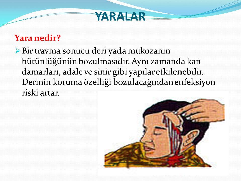 YARALAR Kaç çeşit yara vardır.Kesik yaralar:  Bıçak, çakı, cam gibi kesici aletlerle oluşur.