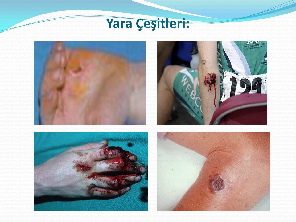 Delici Karın Yaralanmalarında Ne Gibi Sorunlar Görülebilir?