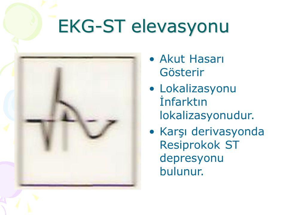 EKG-ST elevasyonu Akut Hasarı Gösterir Lokalizasyonu İnfarktın lokalizasyonudur. Karşı derivasyonda Resiprokok ST depresyonu bulunur.