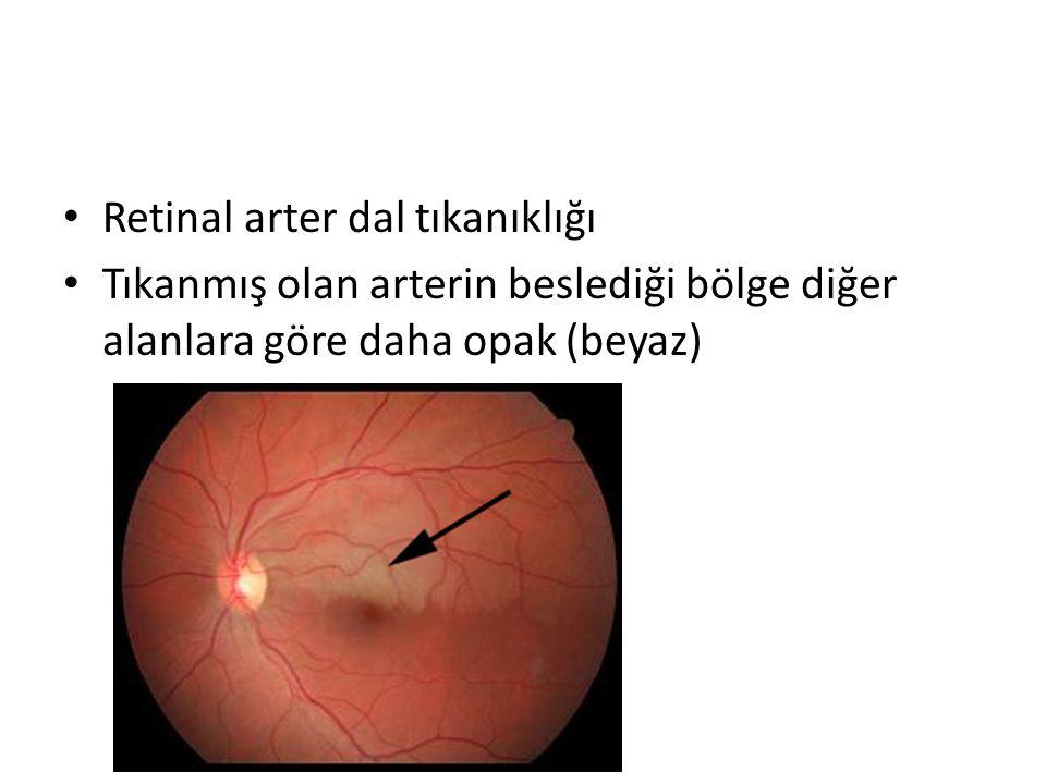 Retinal arter dal tıkanıklığı Tıkanmış olan arterin beslediği bölge diğer alanlara göre daha opak (beyaz)