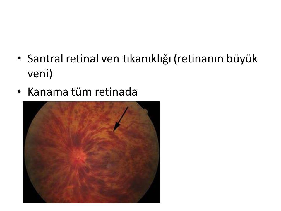 Santral retinal ven tıkanıklığı (retinanın büyük veni) Kanama tüm retinada
