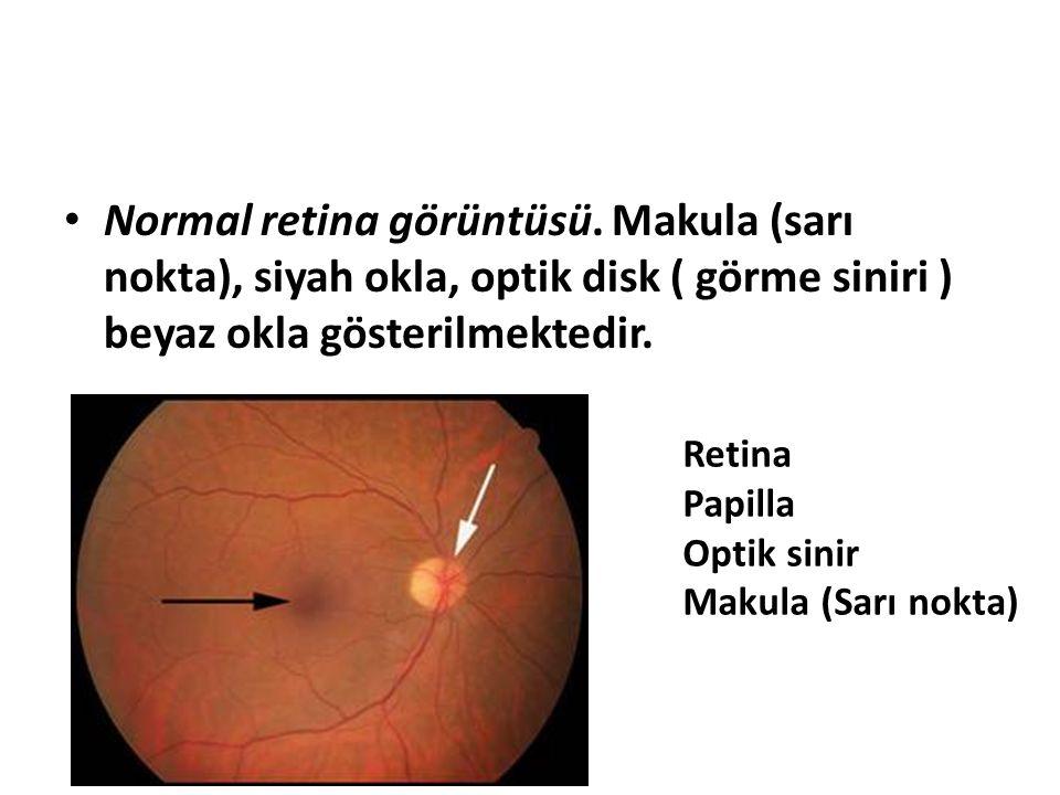 Normal retina görüntüsü. Makula (sarı nokta), siyah okla, optik disk ( görme siniri ) beyaz okla gösterilmektedir. Retina Papilla Optik sinir Makula (