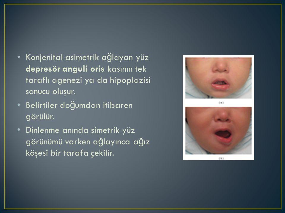 Konjenital asimetrik a ğ layan yüz depresör anguli oris kasının tek taraflı agenezi ya da hipoplazisi sonucu oluşur. Belirtiler do ğ umdan itibaren gö