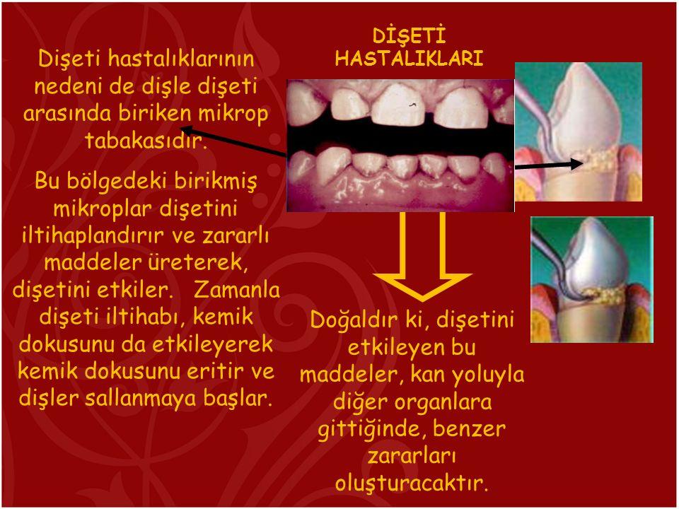 Dişeti hastalıklarının nedeni de dişle dişeti arasında biriken mikrop tabakasıdır. Bu bölgedeki birikmiş mikroplar dişetini iltihaplandırır ve zararlı