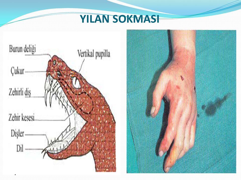 YILAN SOKMASI