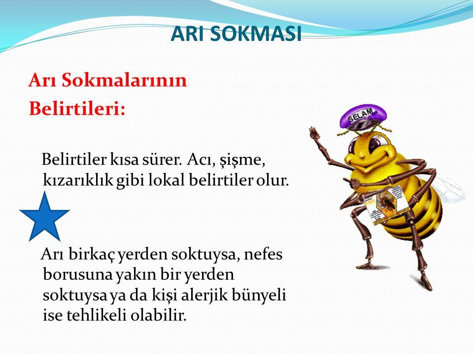 ARI SOKMASI Arı Sokmalarının Belirtileri: Belirtiler kısa sürer. Acı, şişme, kızarıklık gibi lokal belirtiler olur. Arı birkaç yerden soktuysa, nefes