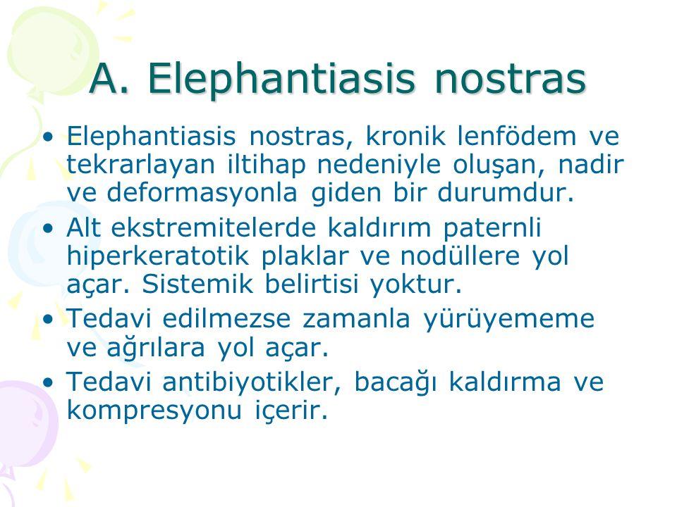 A. Elephantiasis nostras Elephantiasis nostras, kronik lenfödem ve tekrarlayan iltihap nedeniyle oluşan, nadir ve deformasyonla giden bir durumdur. Al