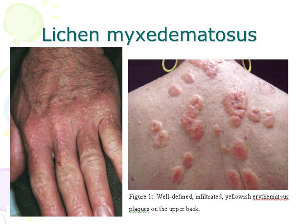 Lichen myxedematosus